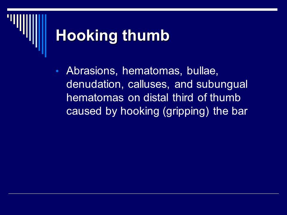 Hooking thumb Abrasions, hematomas, bullae, denudation, calluses, and subungual hematomas on distal third of thumb caused by hooking (gripping) the ba