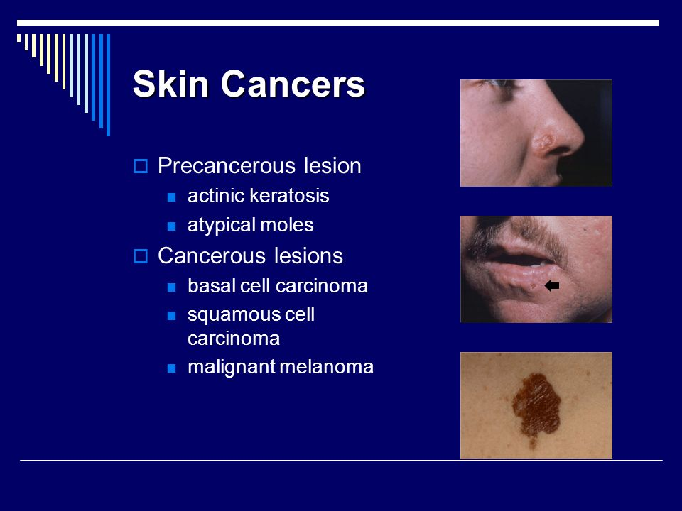 Skin Cancers Precancerous lesion actinic keratosis atypical moles Cancerous lesions basal cell carcinoma squamous cell carcinoma malignant melanoma