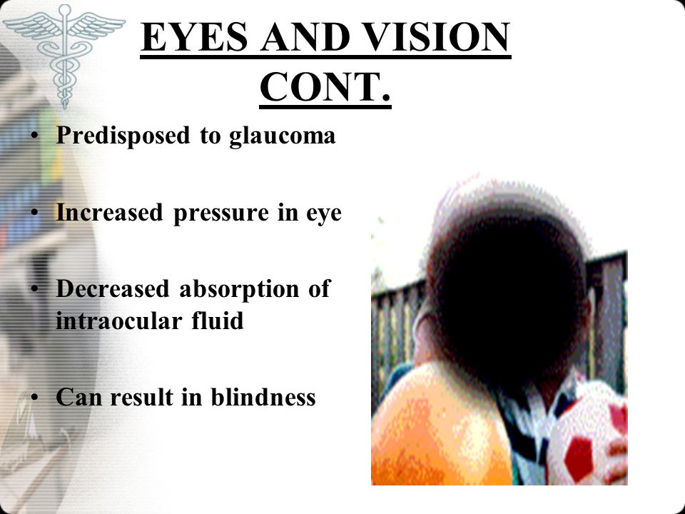 EYES AND VISION CONT. Predisposed to glaucoma Increased pressure in eye Decreased absorption of intraocular fluid Can result in blindness