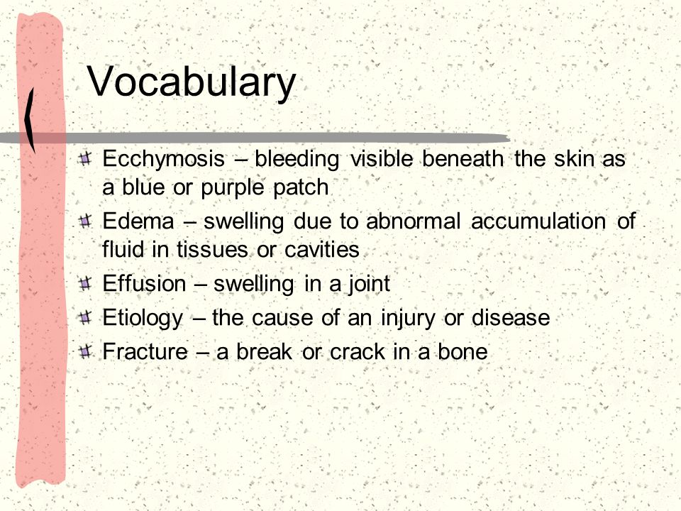 Vocabulary Ecchymosis – bleeding visible beneath the skin as a blue or purple patch Edema – swelling due to abnormal accumulation of fluid in tissues