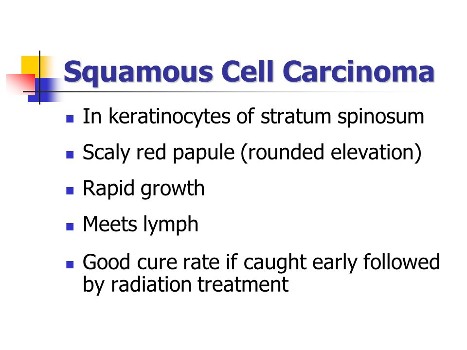 Squamous Cell Carcinoma In keratinocytes of stratum spinosum Scaly red papule (rounded elevation) Rapid growth Meets lymph Good cure rate if caught ea