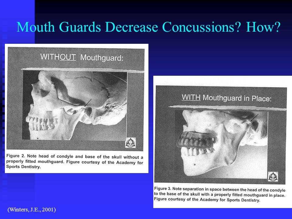 Mouth Guards Decrease Concussions? How? (Winters, J.E., 2001)
