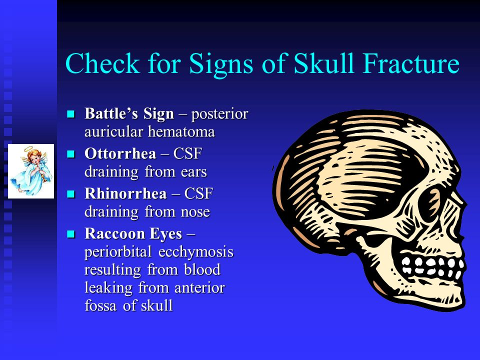 Check for Signs of Skull Fracture Battles Sign – posterior auricular hematoma Battles Sign – posterior auricular hematoma Ottorrhea – CSF draining fro