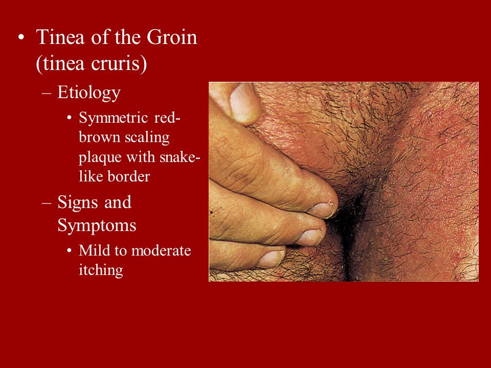 Tinea of the Groin (tinea cruris) –Etiology Symmetric red- brown scaling plaque with snake- like border –Signs and Symptoms Mild to moderate itching