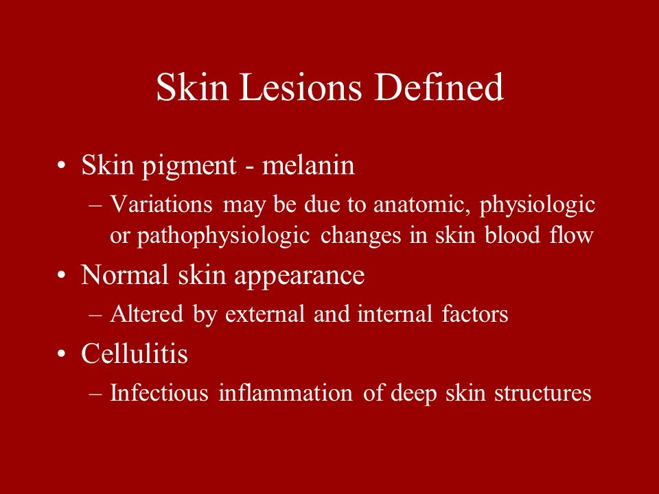 Skin Lesions Defined Skin pigment - melanin –Variations may be due to anatomic, physiologic or pathophysiologic changes in skin blood flow Normal skin