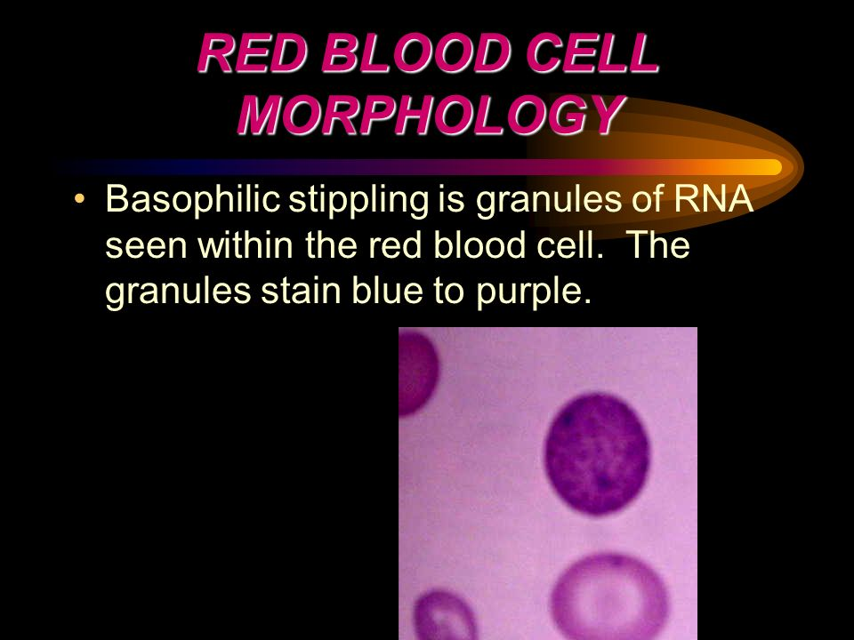 RED BLOOD CELL MORPHOLOGY Basophilic stippling is granules of RNA seen within the red blood cell. The granules stain blue to purple.