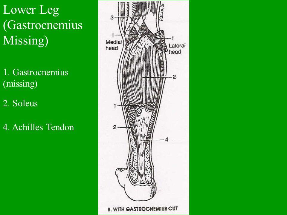 Lower Leg (Gastrocnemius Missing) 1. Gastrocnemius (missing) 2. Soleus 4. Achilles Tendon