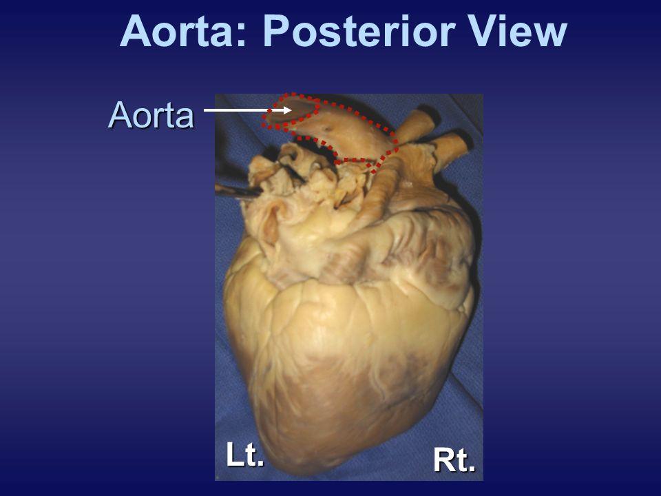Aorta: Posterior ViewAorta Lt. Rt.