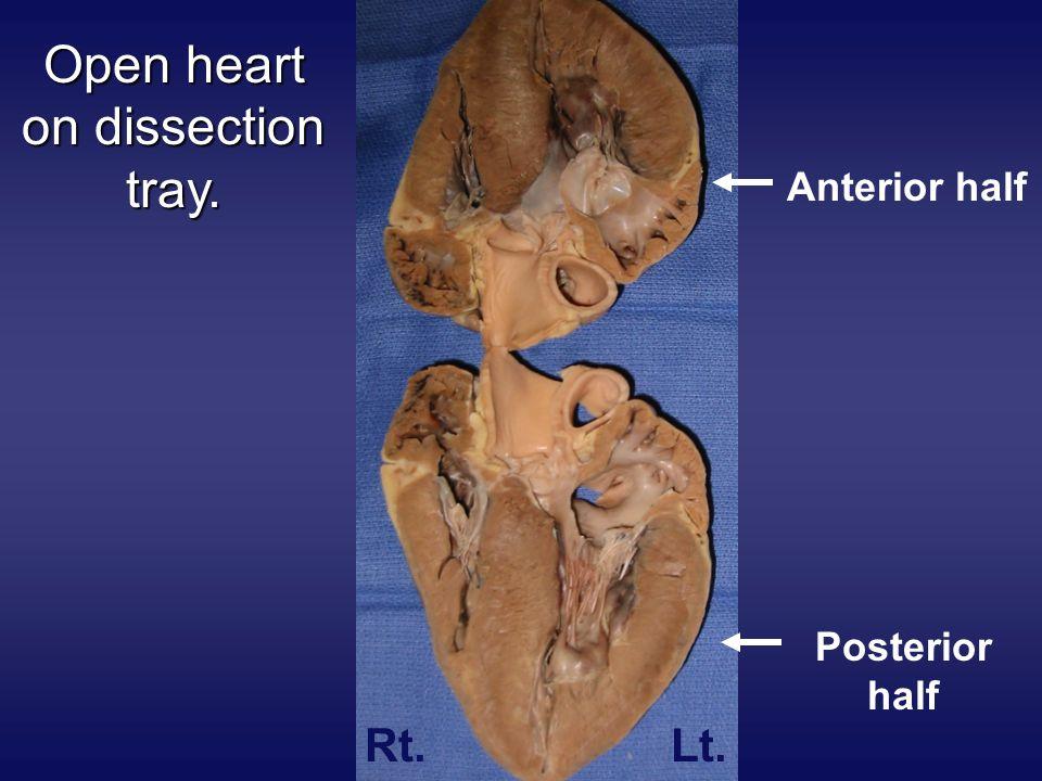 Open heart on dissection tray. Posterior half Anterior half Rt.Lt.