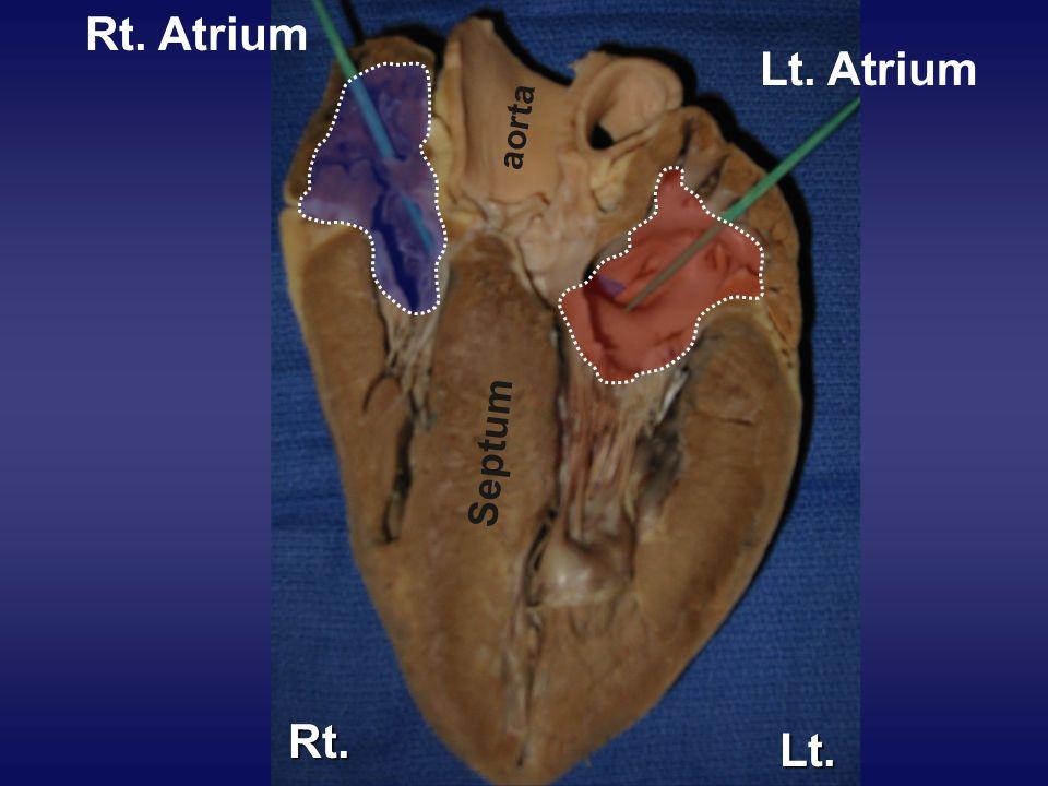 Septum Lt. Atrium Rt. Atrium aorta Rt. Lt.
