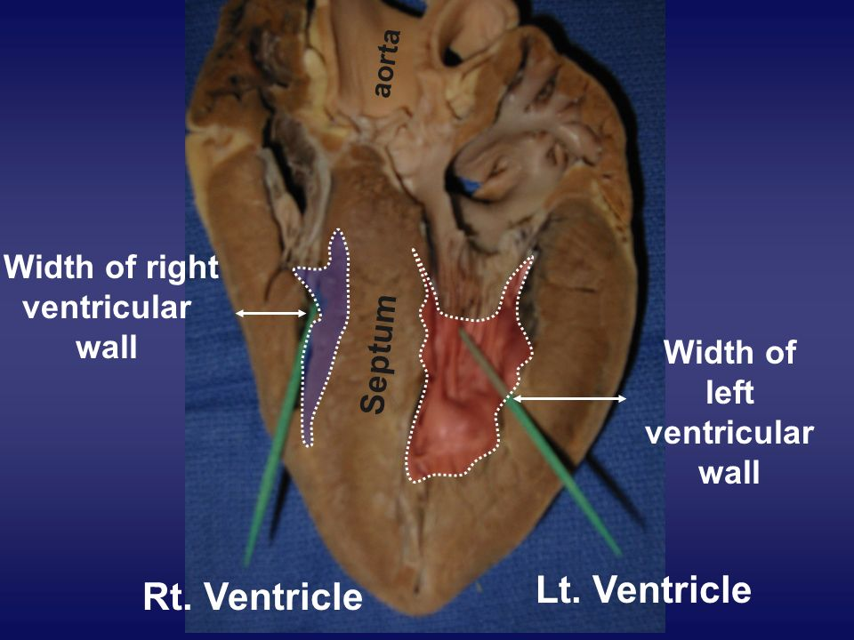 Rt. Ventricle Lt. Ventricle Septum aorta Width of right ventricular wall Width of left ventricular wall