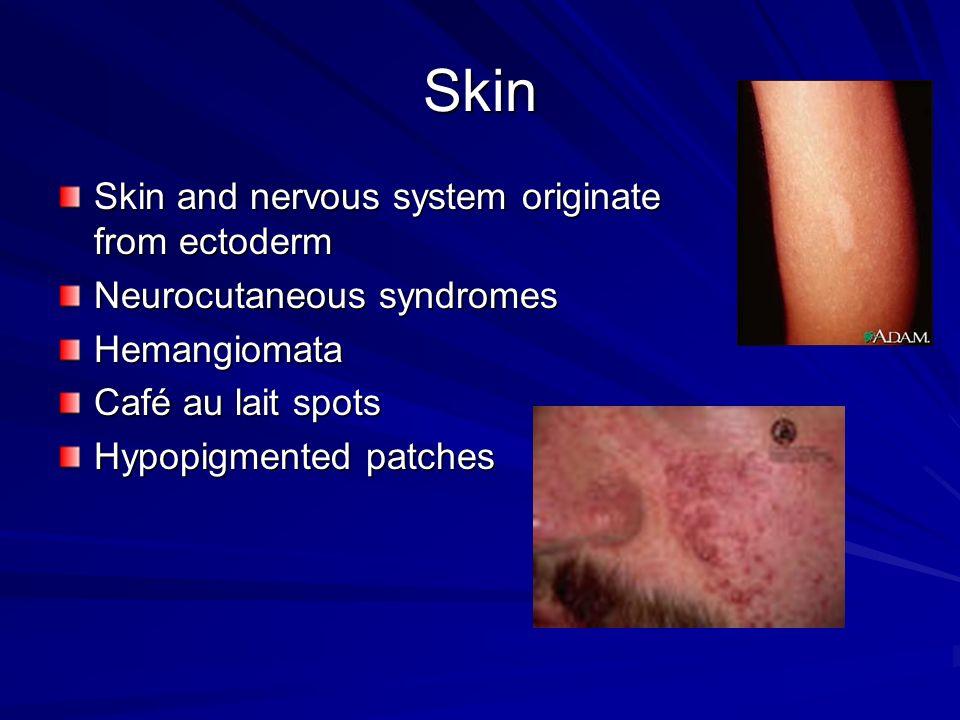 Skin Skin and nervous system originate from ectoderm Neurocutaneous syndromes Hemangiomata Café au lait spots Hypopigmented patches