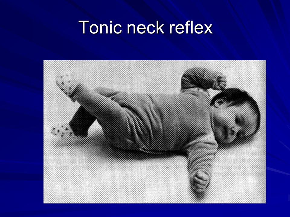 Tonic neck reflex