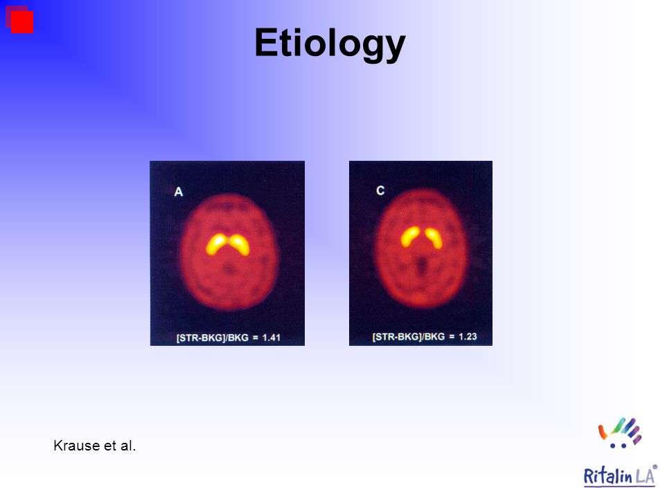Etiology Krause et al.