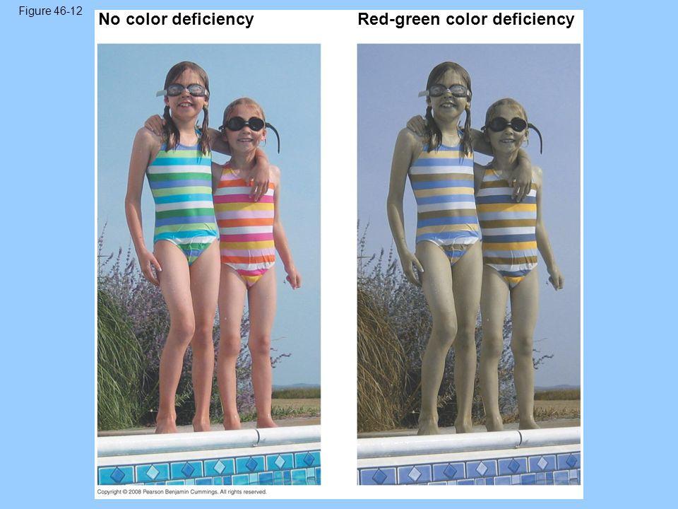 Figure 46-12 No color deficiencyRed-green color deficiency