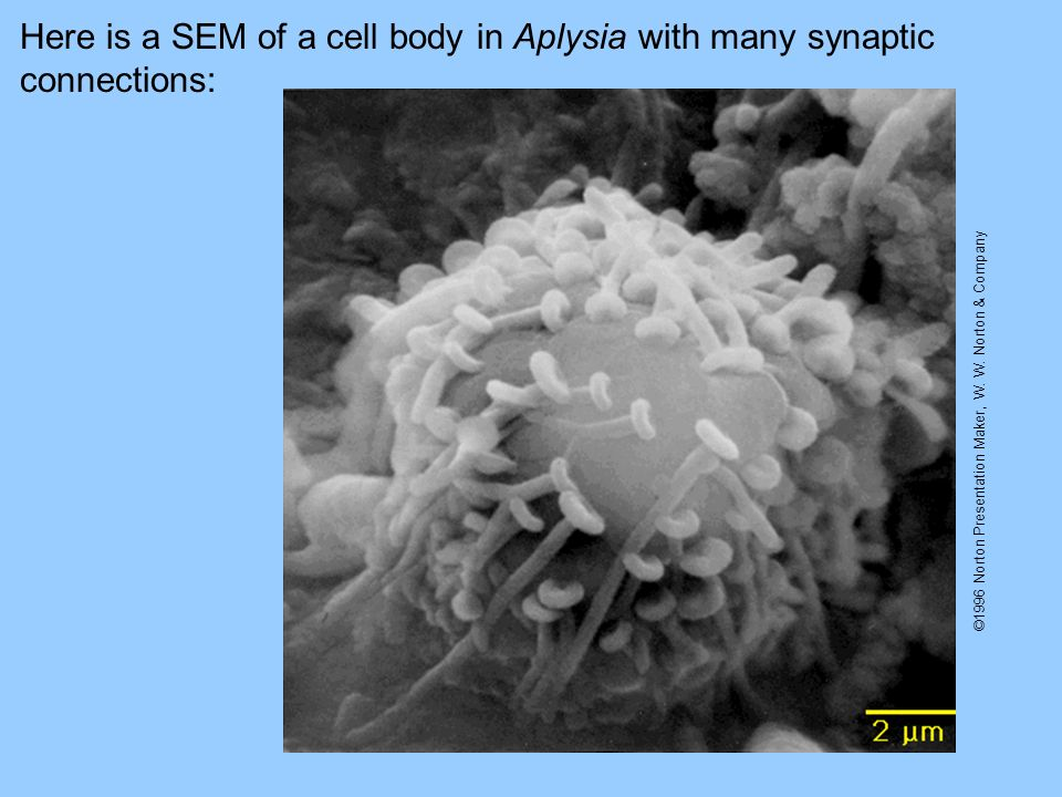 ©1996 Norton Presentation Maker, W. W. Norton & Company Here is a SEM of a cell body in Aplysia with many synaptic connections: