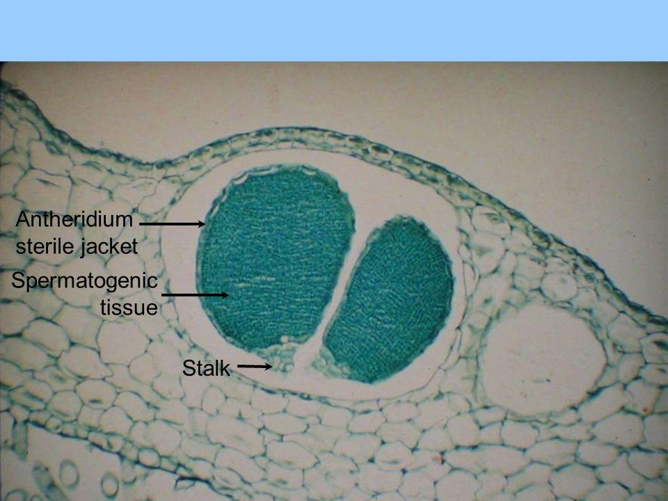 Antheridium sterile jacket Spermatogenic tissue Stalk