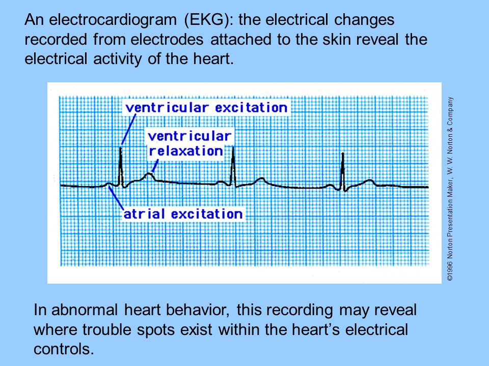 ©1996 Norton Presentation Maker, W. W. Norton & Company An electrocardiogram (EKG): the electrical changes recorded from electrodes attached to the sk
