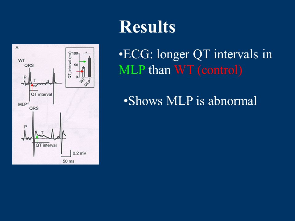 Results ECG: longer QT intervals in MLP than WT (control) Shows MLP is abnormal