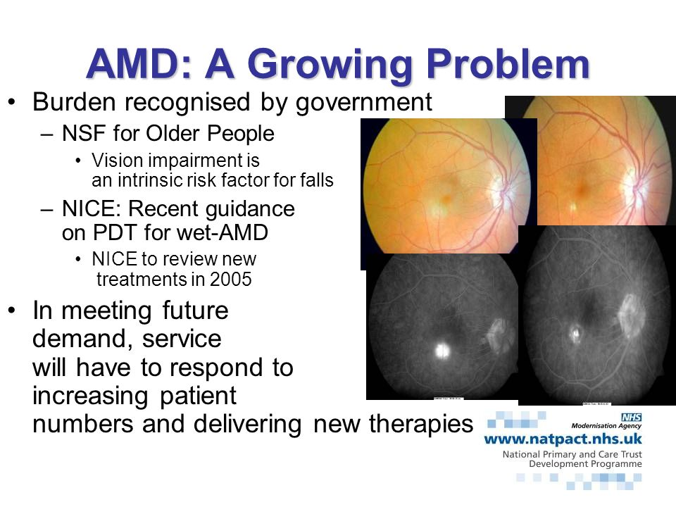 DEMOGRAPHICSAMD 1998 approximately 8.31998 approximately 8.3 on people over the age of 65 in England and Wales –4.3 million have impaired vision –AMD is the leading cause in over 65s By 2020 –A 25% increase in the over 65 population is expected –Incidence of ARMD expected to rise by 31%