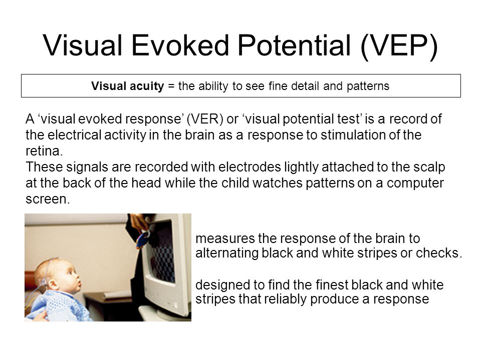 Visual Evoked Potential (VEP) measures the response of the brain to alternating black and white stripes or checks. designed to find the finest black a