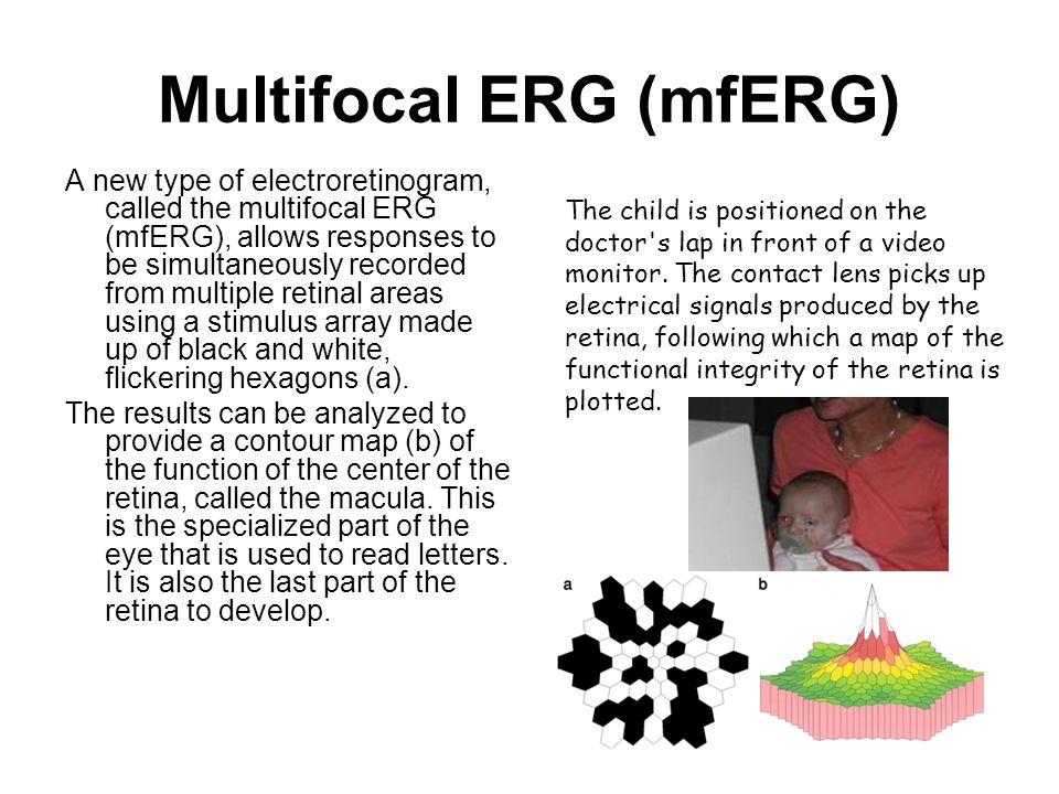 Multifocal ERG (mfERG) A new type of electroretinogram, called the multifocal ERG (mfERG), allows responses to be simultaneously recorded from multipl