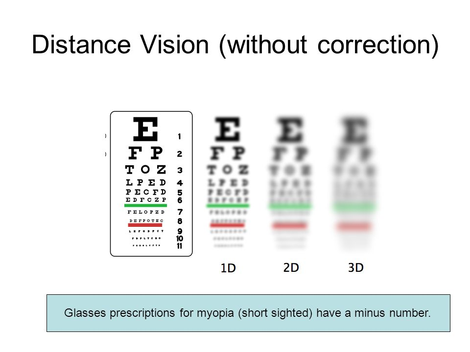 Distance Vision (without correction) Glasses prescriptions for myopia (short sighted) have a minus number.