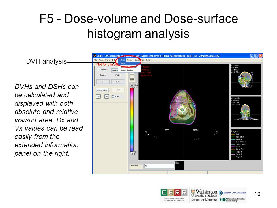 10 F5 - Dose-volume and Dose-surface histogram analysis DVH analysis DVHs and DSHs can be calculated and displayed with both absolute and relative vol
