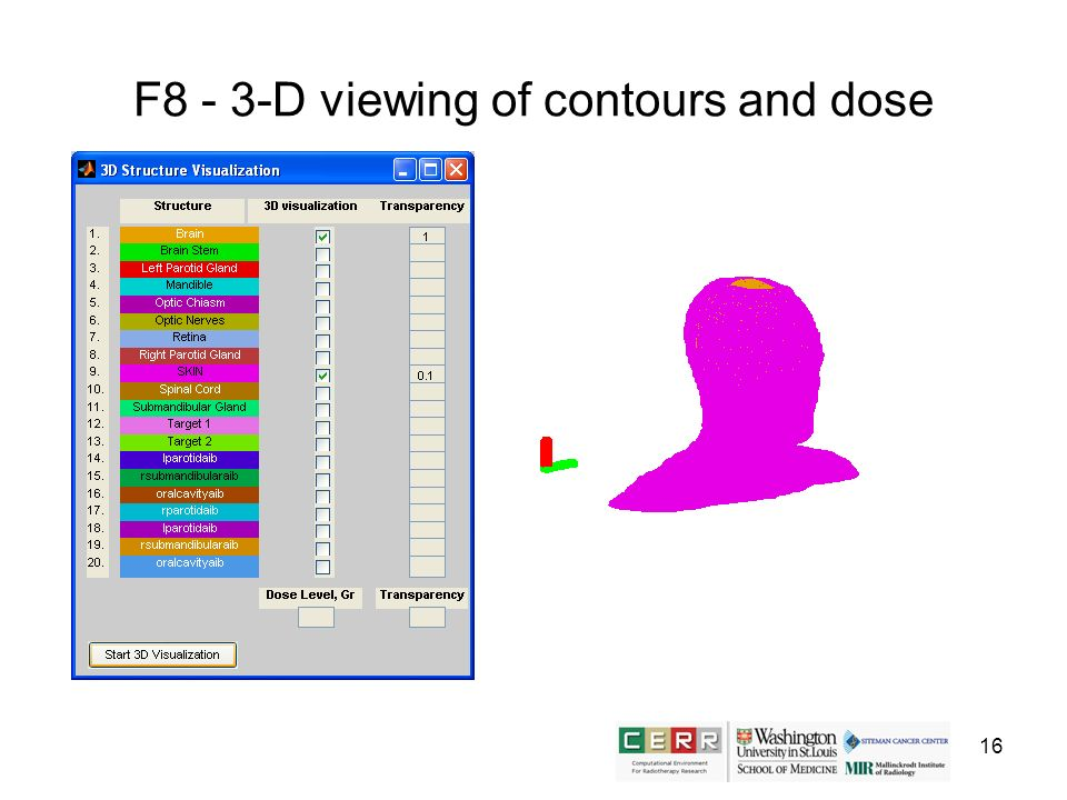 16 F8 - 3-D viewing of contours and dose