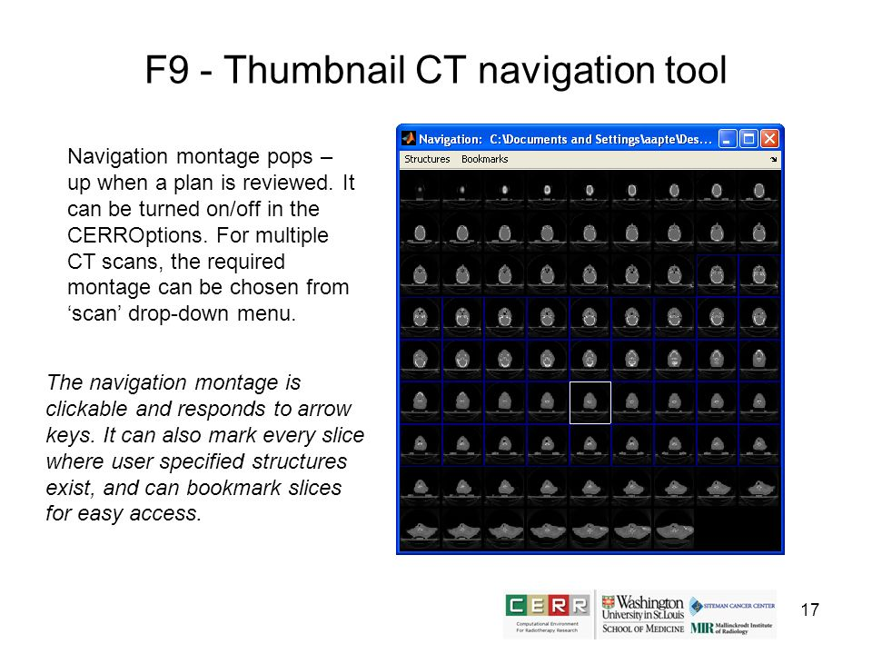 17 F9 - Thumbnail CT navigation tool The navigation montage is clickable and responds to arrow keys. It can also mark every slice where user specified