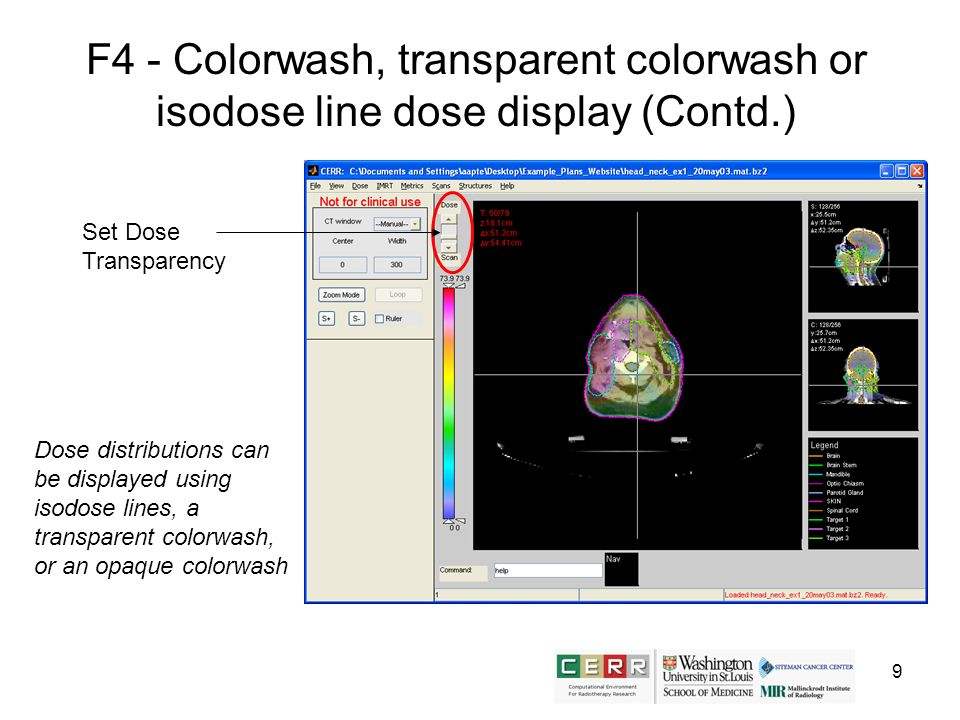9 F4 - Colorwash, transparent colorwash or isodose line dose display (Contd.) Dose distributions can be displayed using isodose lines, a transparent c