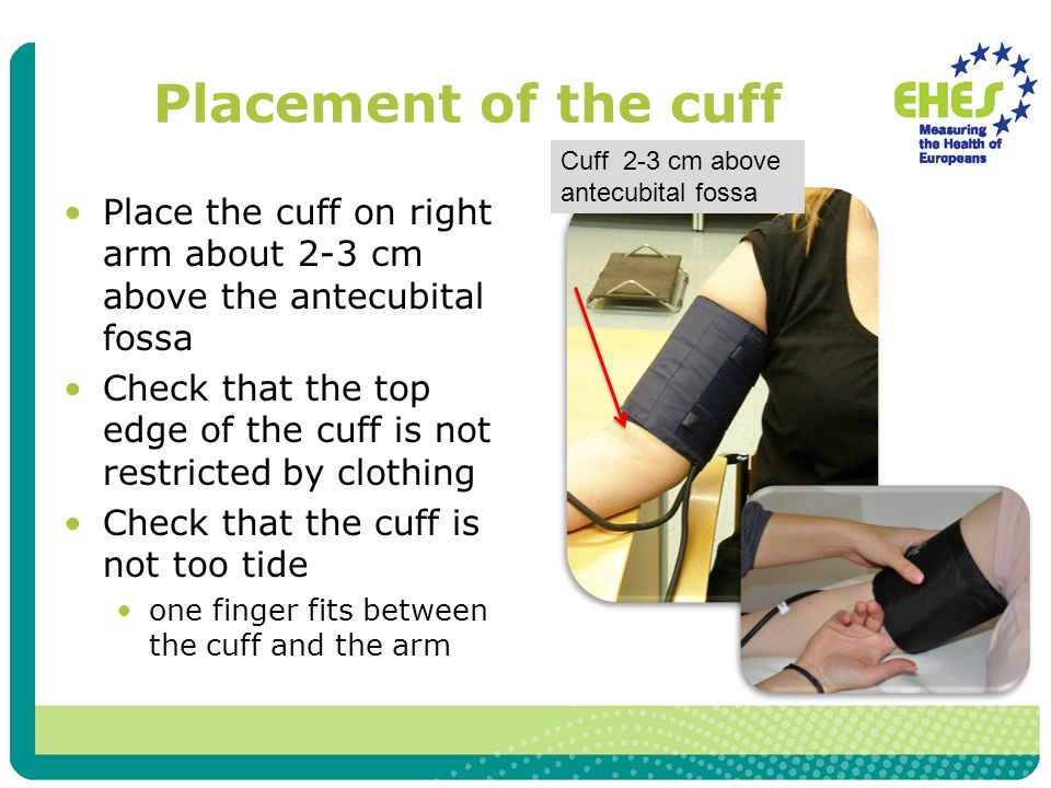 Placement of the cuff Place the cuff on right arm about 2-3 cm above the antecubital fossa Check that the top edge of the cuff is not restricted by clothing Check that the cuff is not too tide one finger fits between the cuff and the arm Cuff 2-3 cm above antecubital fossa
