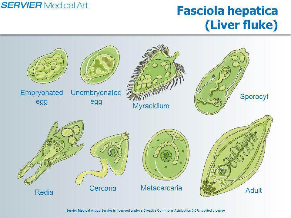 Servier Medical Art by Servier is licensed under a Creative Commons Attribution 3.0 Unported License Fasciola hepatica (Liver fluke) Redia Adult Embryonated egg Myracidium Sporocyt Cercaria Metacercaria Unembryonated egg