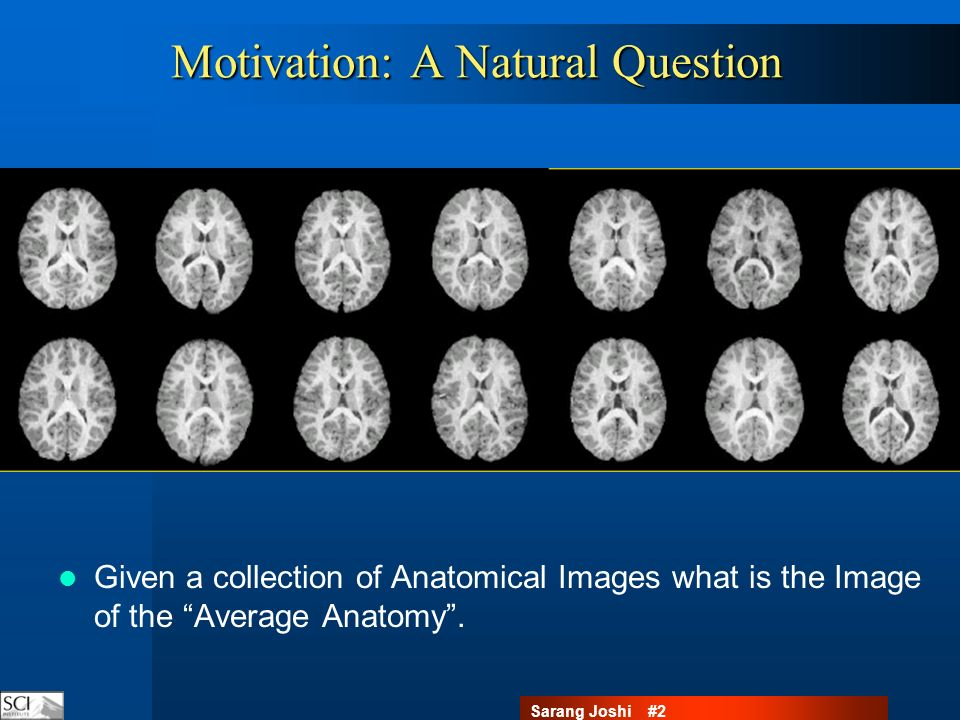 Sarang Joshi #23Regression Given an age index population what are the average anatomical changes?
