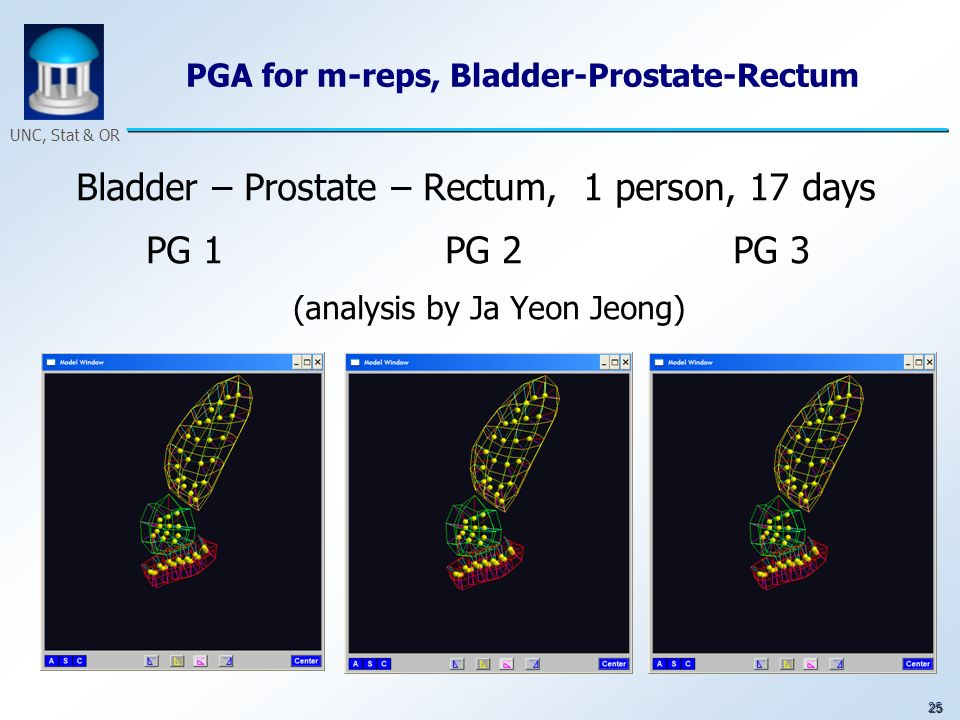 25 UNC, Stat & OR PGA for m-reps, Bladder-Prostate-Rectum Bladder – Prostate – Rectum, 1 person, 17 days PG 1 PG 2 PG 3 (analysis by Ja Yeon Jeong)