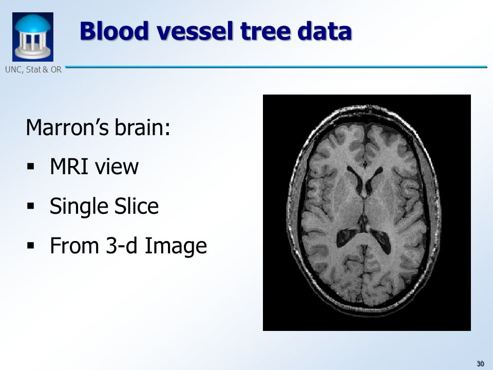 30 UNC, Stat & OR Blood vessel tree data Marrons brain: MRI view Single Slice From 3-d Image