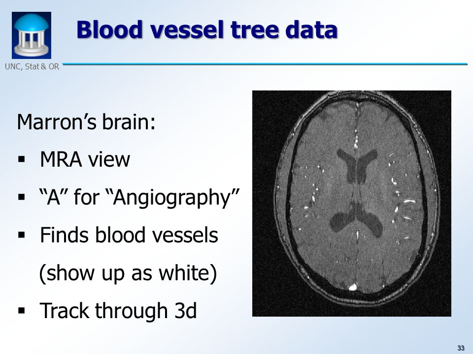 33 UNC, Stat & OR Blood vessel tree data Marrons brain: MRA view A for Angiography Finds blood vessels (show up as white) Track through 3d
