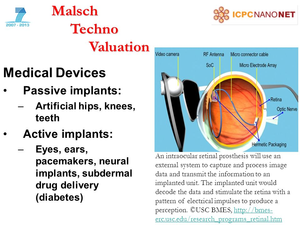 Medical Devices Passive implants: –Artificial hips, knees, teeth Active implants: –Eyes, ears, pacemakers, neural implants, subdermal drug delivery (diabetes)Malsch Techno Techno Valuation Valuation An intraocular retinal prosthesis will use an external system to capture and process image data and transmit the information to an implanted unit.