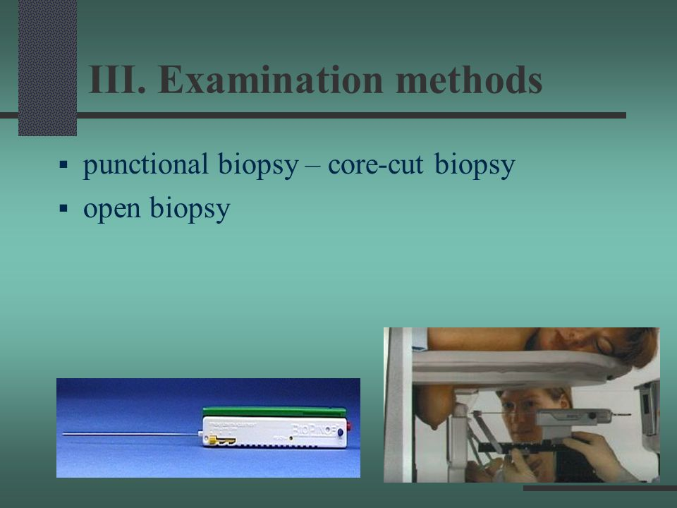 III. Examination methods punctional biopsy – core-cut biopsy open biopsy
