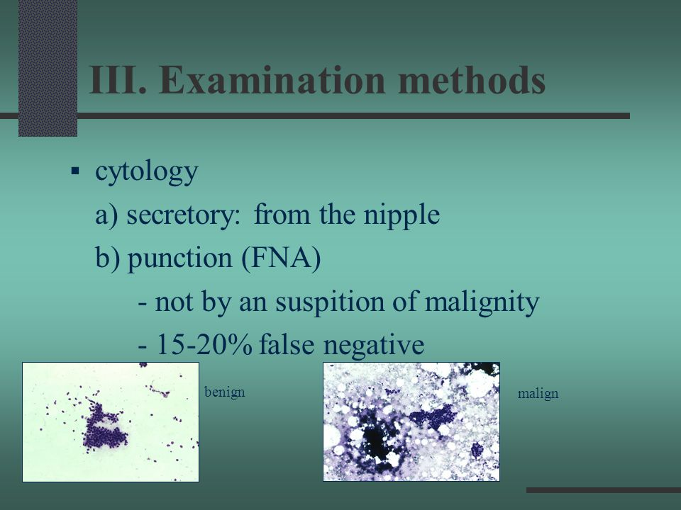 III. Examination methods cytology a) secretory: from the nipple b) punction (FNA) - not by an suspition of malignity - 15-20% false negative benign ma