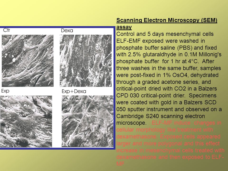 Scanning Electron Microscopy (SEM) assay Control and 5 days mesenchymal cells ELF-EMF exposed were washed in phosphate buffer saline (PBS) and fixed with 2.5% glutaraldhyde in 0.1M Millonig s phosphate buffer for 1 hr at 4°C.