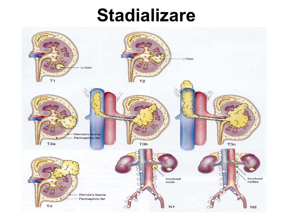 Îngrijiri paliative / suportive durere –medicaţie analgezică –RT pe metastazele dureroase (în special metastaze osoase) –RT în compresiunea medulară hemoragie –angioinfarctizare (embolizarea arterei renale) colică renală –stent ureteral –hidratare hipercalcemie –bifosfonaţi –hidratare fatigabilitate, febră, inapetenţă –AINS –stimularea apetitului