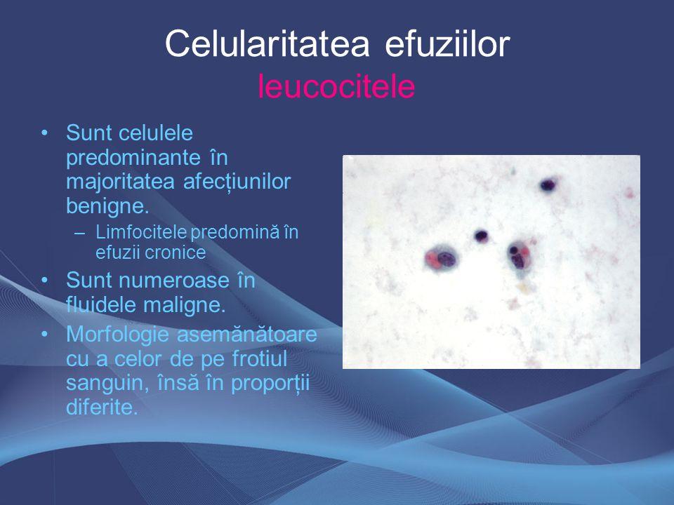 Celularitatea efuziilor leucocitele Sunt celulele predominante în majoritatea afecţiunilor benigne. –Limfocitele predomină în efuzii cronice Sunt nume