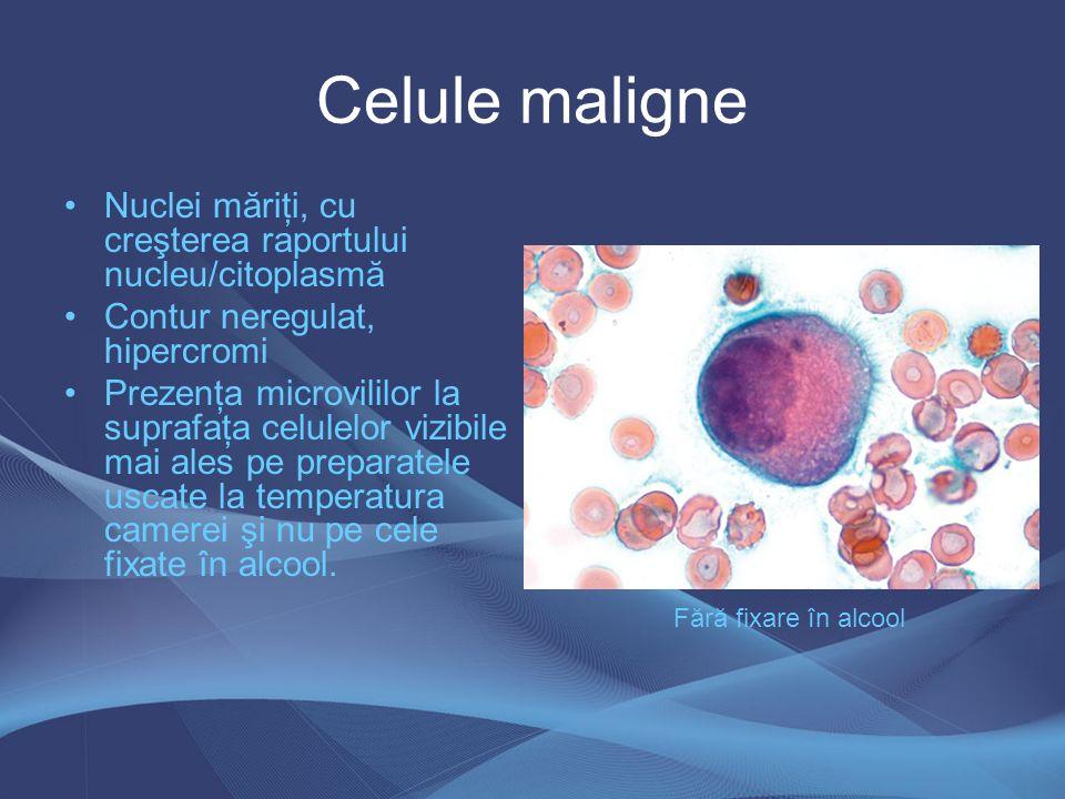 Celule maligne Nuclei măriţi, cu creşterea raportului nucleu/citoplasmă Contur neregulat, hipercromi Prezenţa microvililor la suprafaţa celulelor vizi