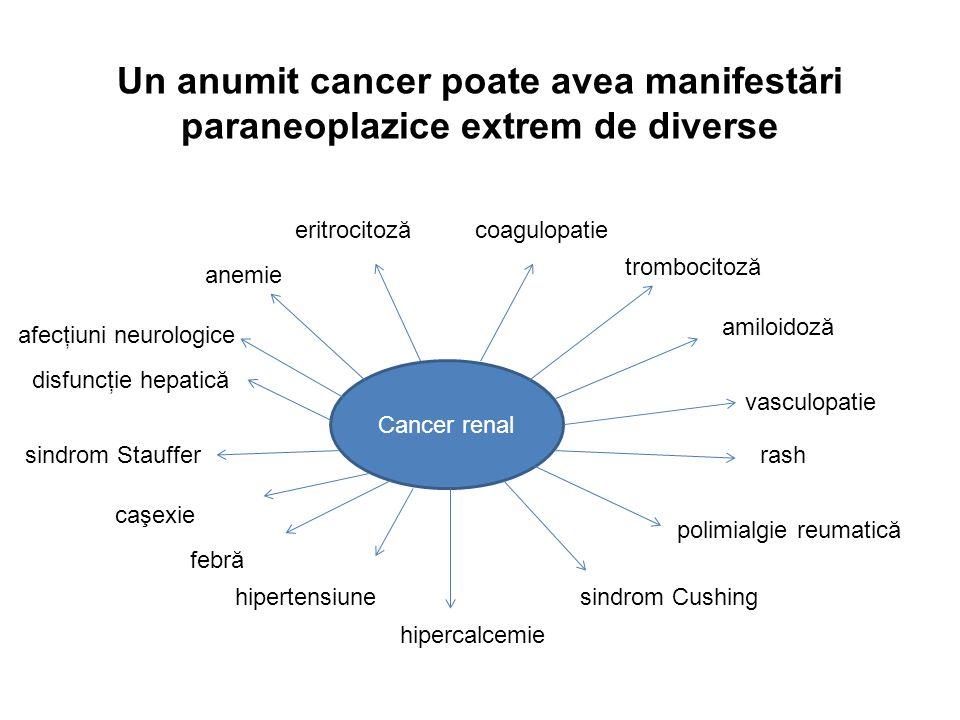 Un anumit cancer poate avea manifestări paraneoplazice extrem de diverse Cancer renal anemie disfuncţie hepatică sindrom Stauffer febră hipercalcemie