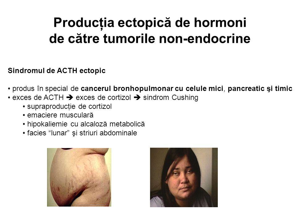 Producţia ectopică de hormoni de către tumorile non-endocrine Sindromul de ACTH ectopic produs în special de cancerul bronhopulmonar cu celule mici, p