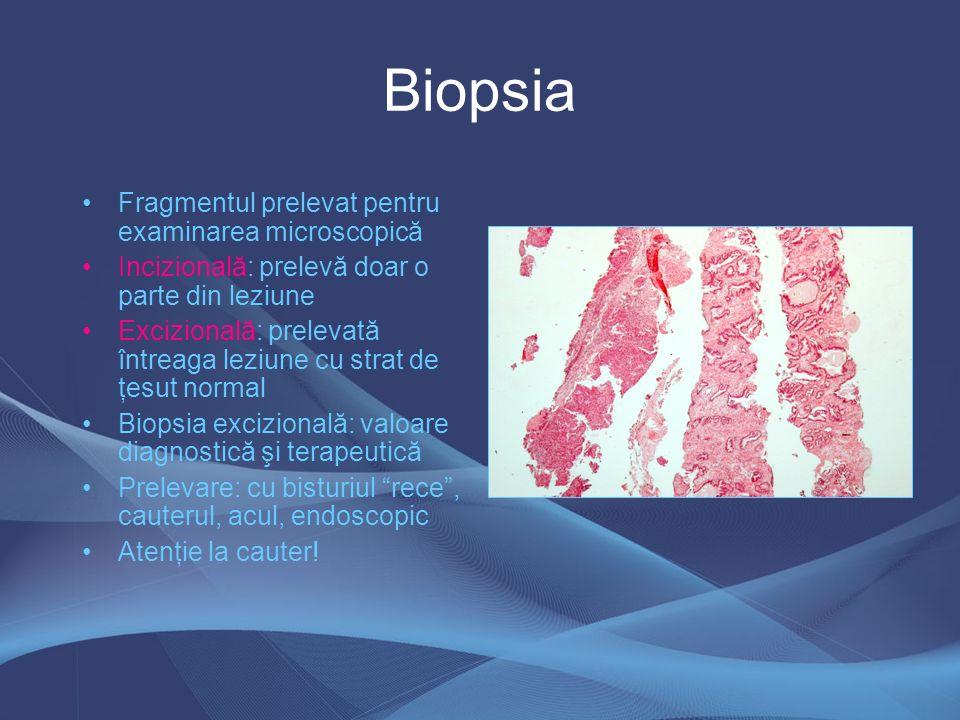 Metode histochimice Reacţia PAS: glicogen, glicoproteine, fungi, paraziţi, mucine neutre Impregnări argentice –fibre de reticulină –celule neuroendocrine –neuroni şi celule gliale Coloraţii pentru microorganisme (Giemsa pt HP) Coloraţii pentru amiloid (roşu de Congo) Coloraţii pentru fibre elastice (orceină) Coloraţii pentru mucine (AA, AA- PAS) –Sialomucine : AA+ la pH 2,5 şi negative la 0,5 –Sulfomucine : AA+ la ph 0,5 şi 2,5