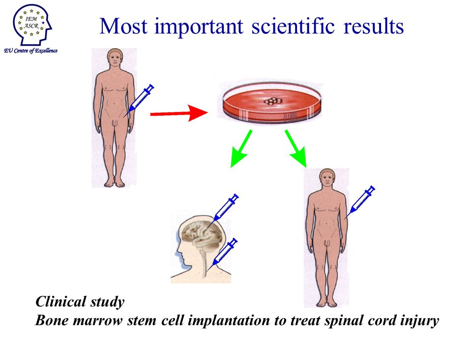 Clinical study Bone marrow stem cell implantation to treat spinal cord injury Most important scientific results