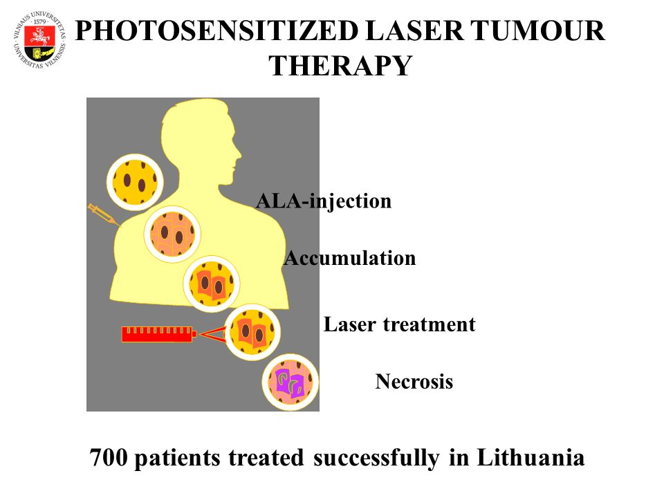 ALA-injection Laser treatment Accumulation Necrosis PHOTOSENSITIZED LASER TUMOUR THERAPY 700 patients treated successfully in Lithuania