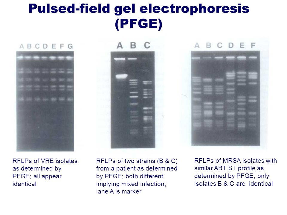 Pulsed-field gel electrophoresis (PFGE) RFLPs of VRE isolates as determined by PFGE; all appear identical RFLPs of two strains (B & C) from a patient
